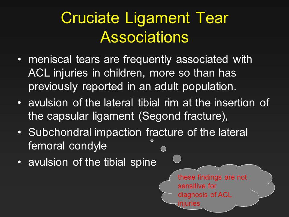Cruciate Ligament Tear Associations