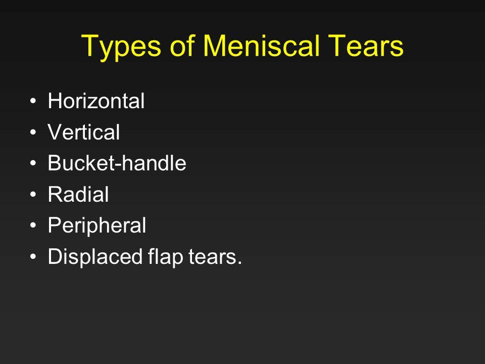 Types of Meniscal Tears