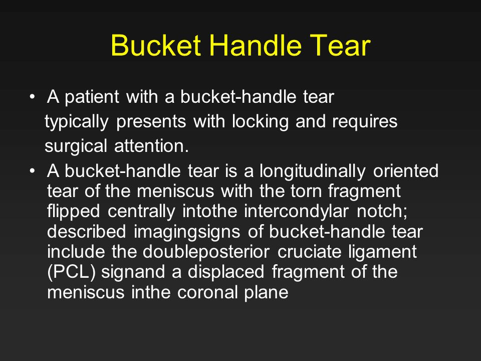 Bucket Handle Tear A patient with a bucket-handle tear