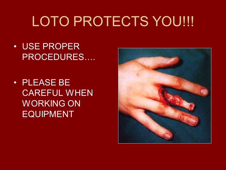 LOTO PROTECTS YOU!!! USE PROPER PROCEDURES….
