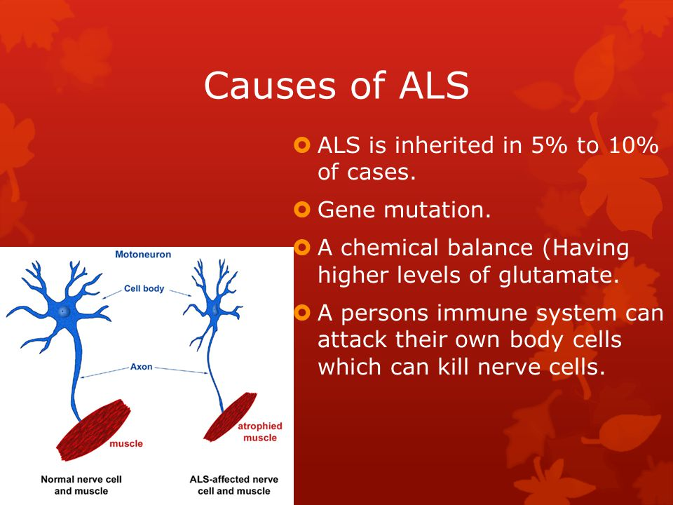 Causes of ALS ALS is inherited in 5% to 10% of cases. Gene mutation.
