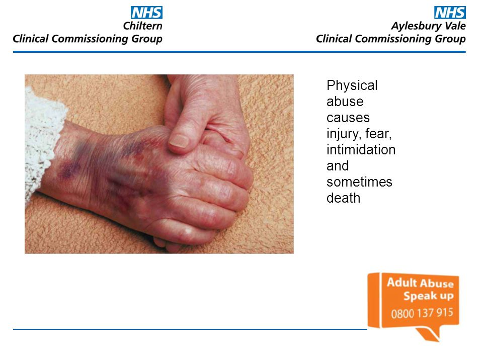 Physical abuse causes injury, fear, intimidation and sometimes death