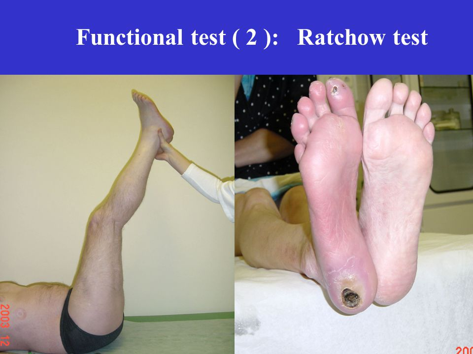 Functional test ( 2 ): Ratchow test