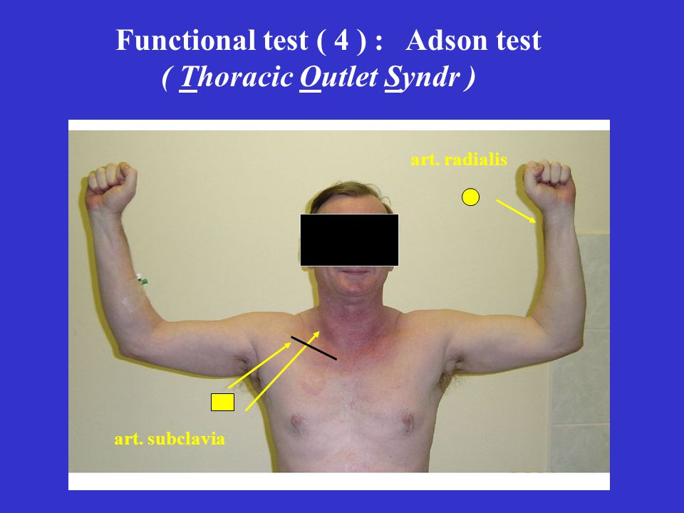 Functional test ( 4 ) : Adson test ( Thoracic Outlet Syndr )