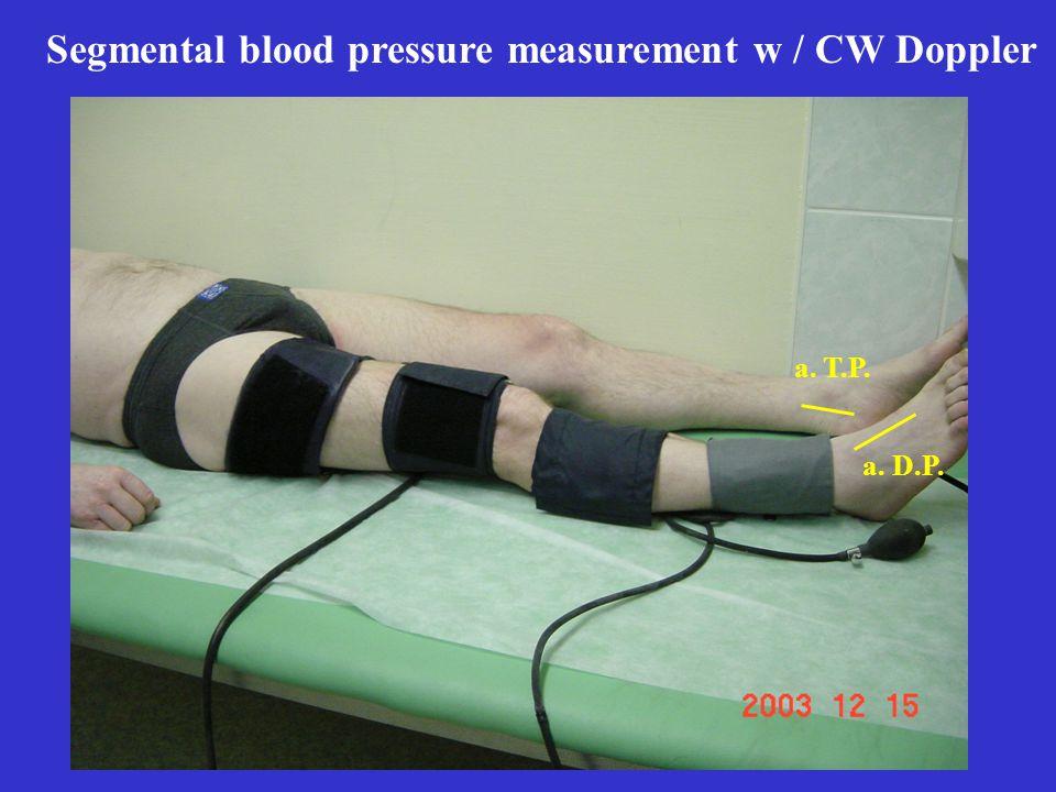 Segmental blood pressure measurement w / CW Doppler