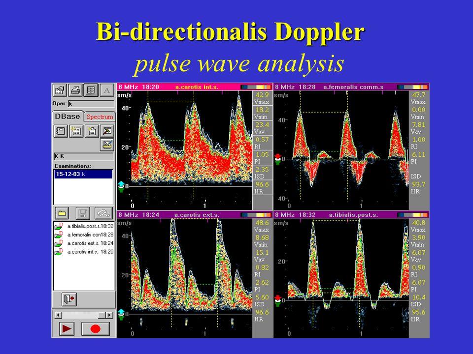 Bi-directionalis Doppler
