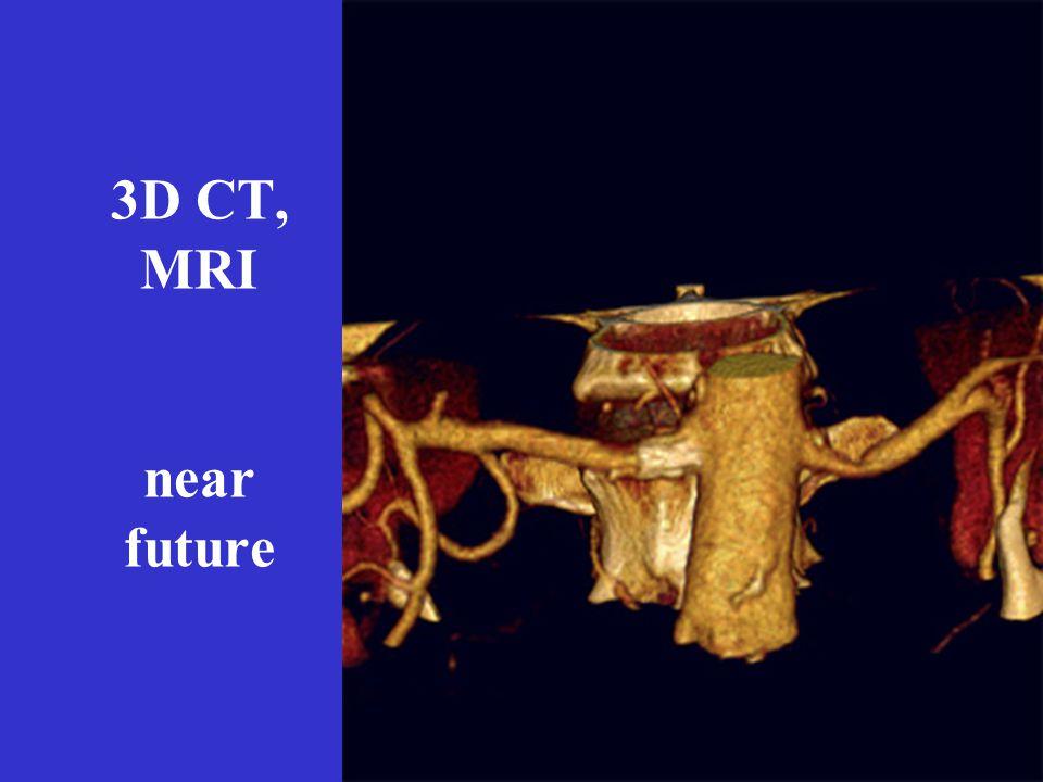 3D CT, MRI near future