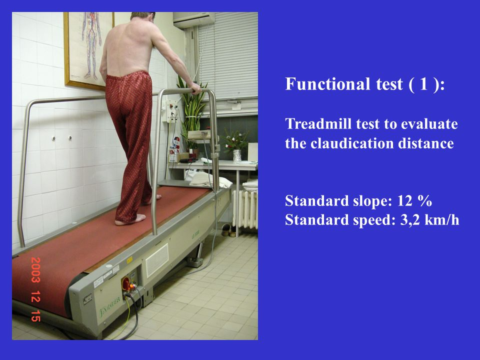 Functional test ( 1 ): Treadmill test to evaluate