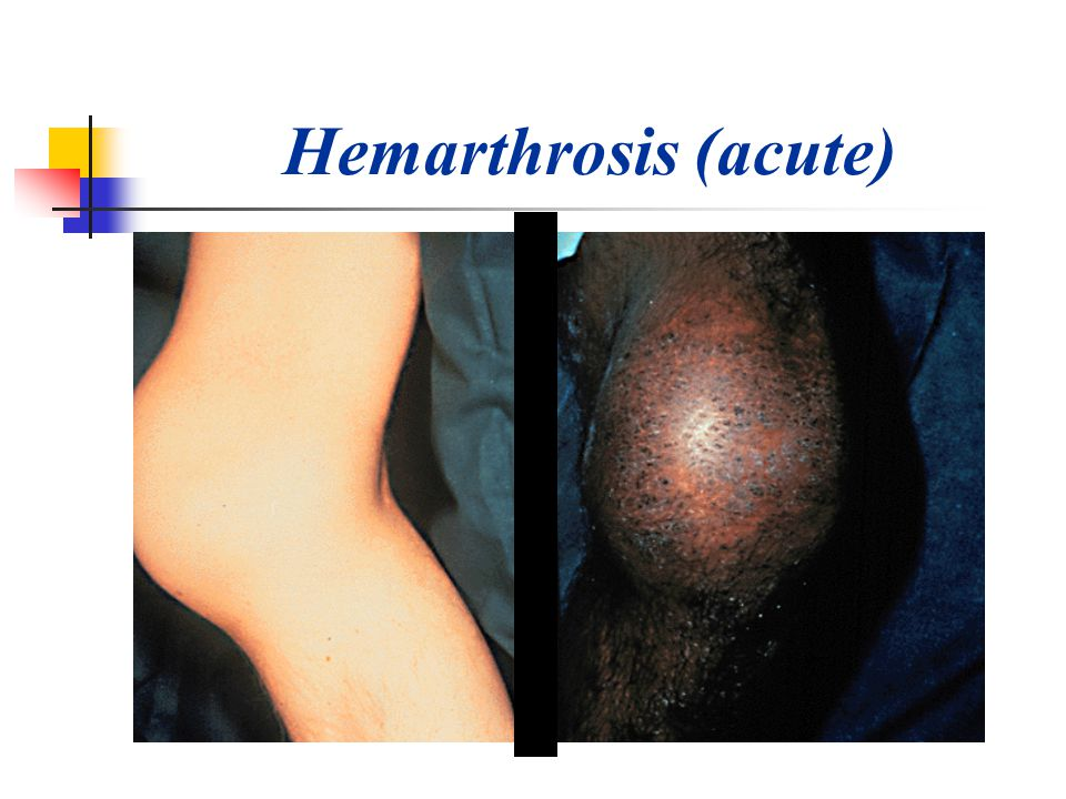 Hemarthrosis (acute)