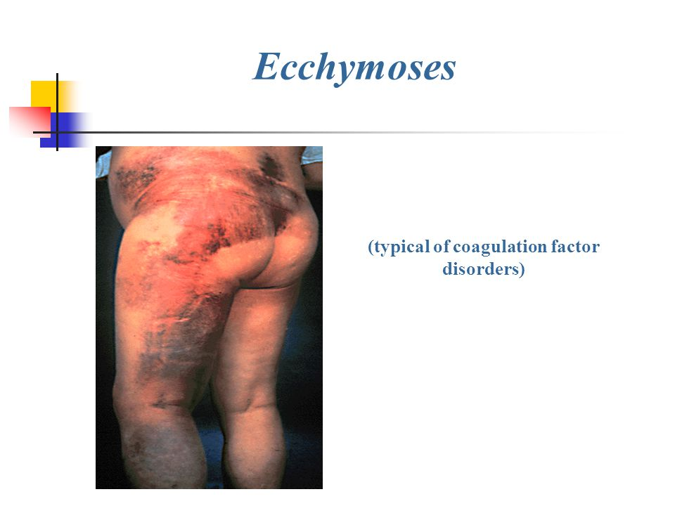 (typical of coagulation factor disorders)