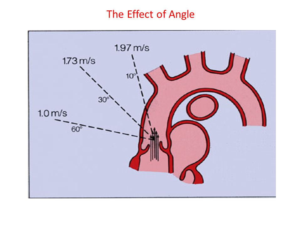 The Effect of Angle