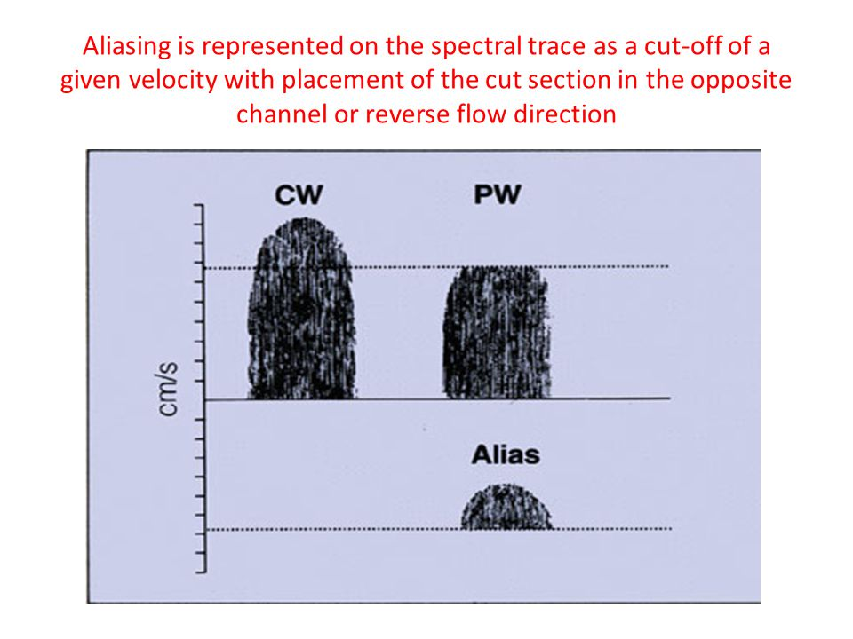 Aliasing is represented on the spectral trace as a cut-off of a given velocity with placement of the cut section in the opposite channel or reverse flow direction