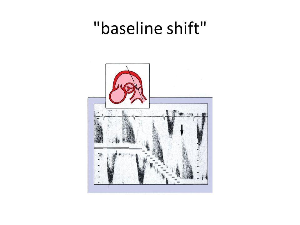 baseline shift
