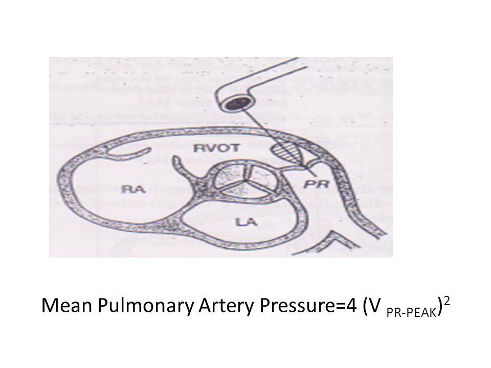 Mean Pulmonary Artery Pressure=4 (V PR-PEAK)2