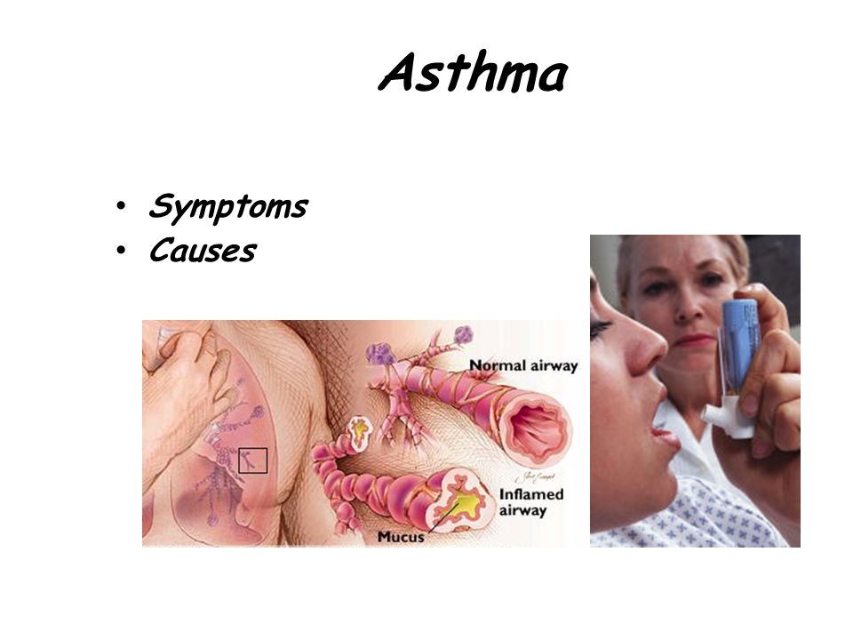 Asthma Symptoms Causes