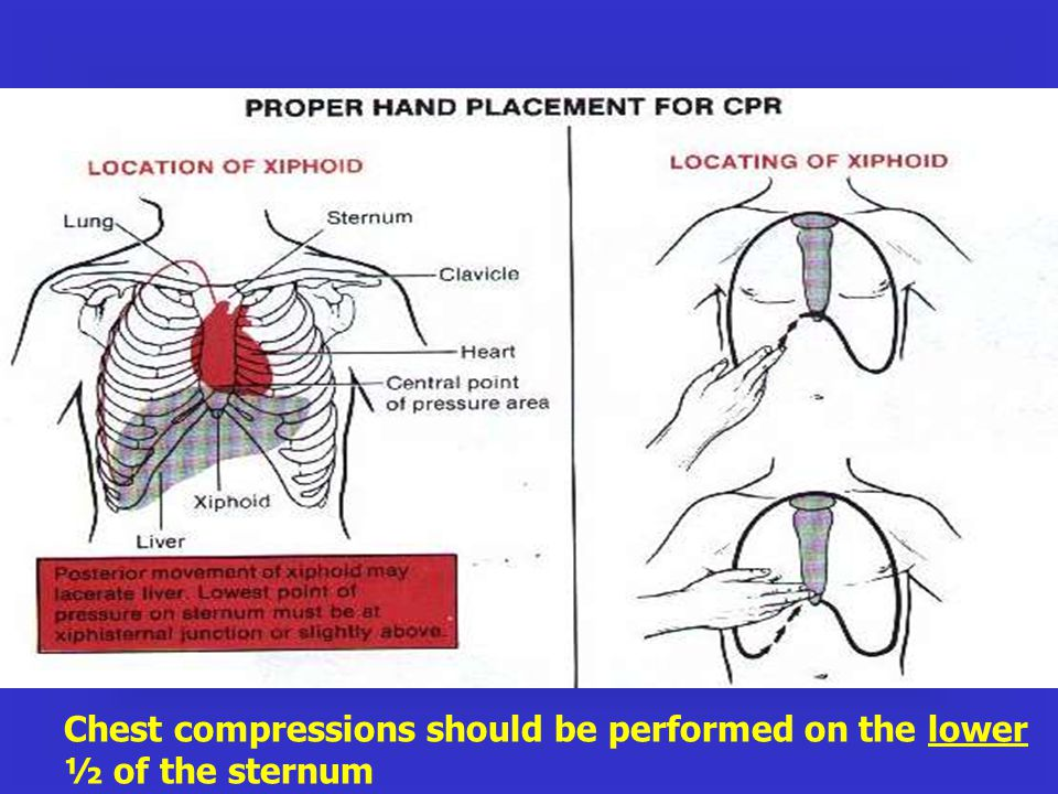 Chest compressions should be performed on the lower