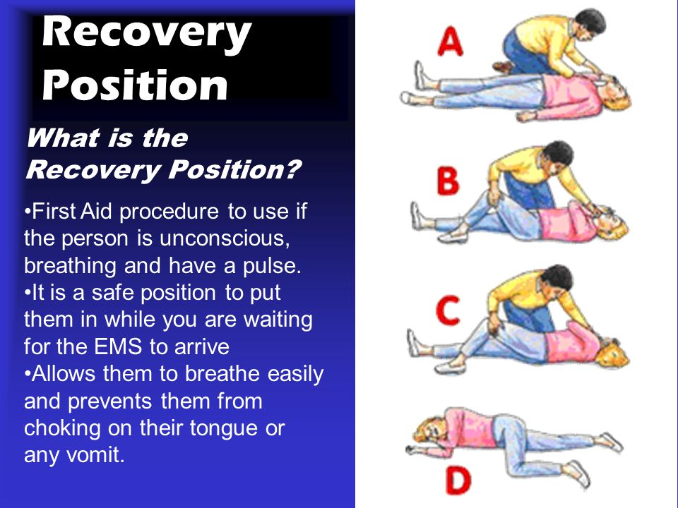 Recovery Position What is the Recovery Position