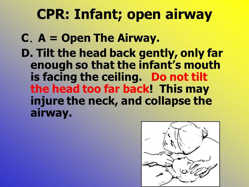 CPR: Infant; open airway