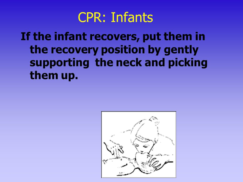 CPR: Infants If the infant recovers, put them in the recovery position by gently supporting the neck and picking them up.