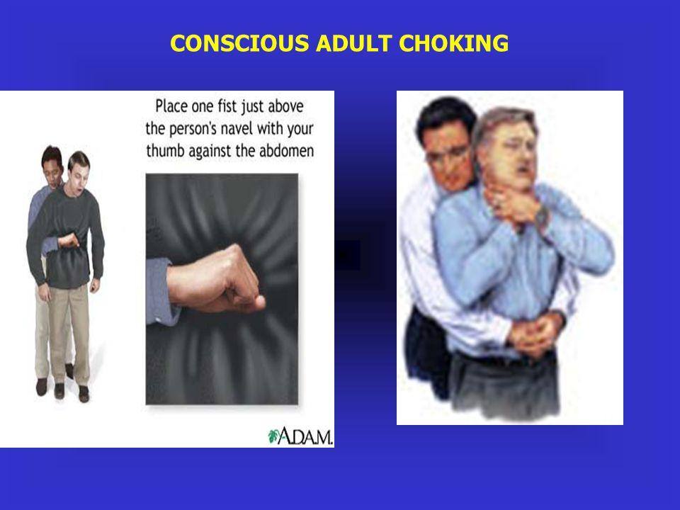 CONSCIOUS ADULT CHOKING
