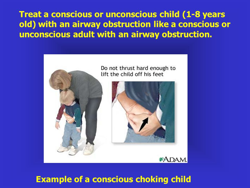 Treat a conscious or unconscious child (1-8 years old) with an airway obstruction like a conscious or unconscious adult with an airway obstruction.