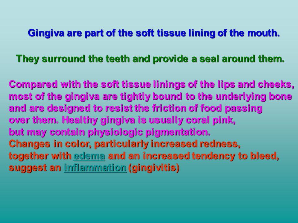 Gingiva are part of the soft tissue lining of the mouth.