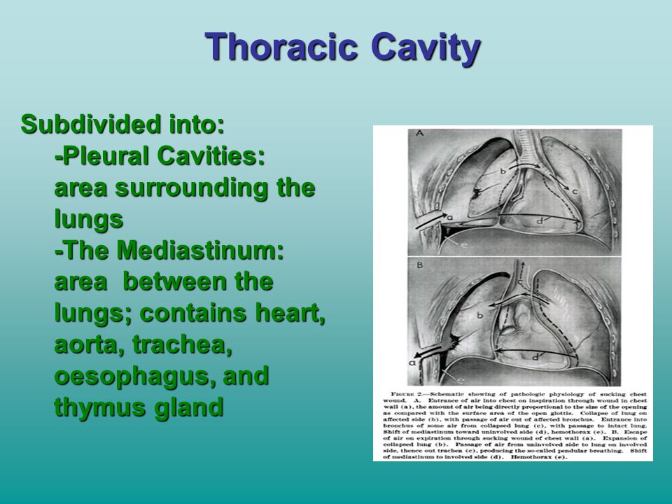 Thoracic Cavity Subdivided into: -Pleural Cavities: