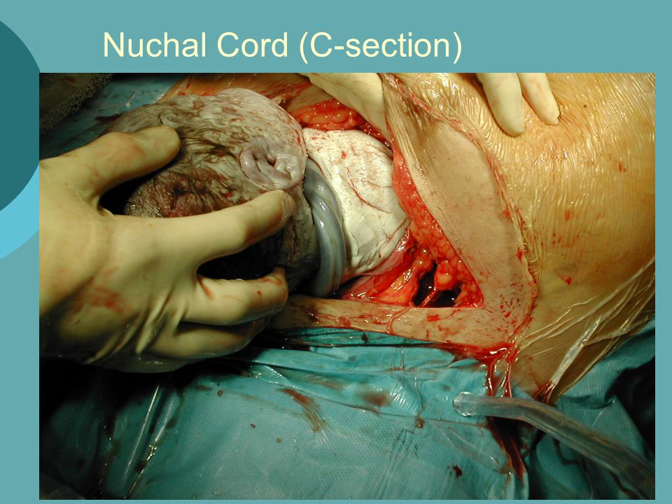 Nuchal Cord (C-section)