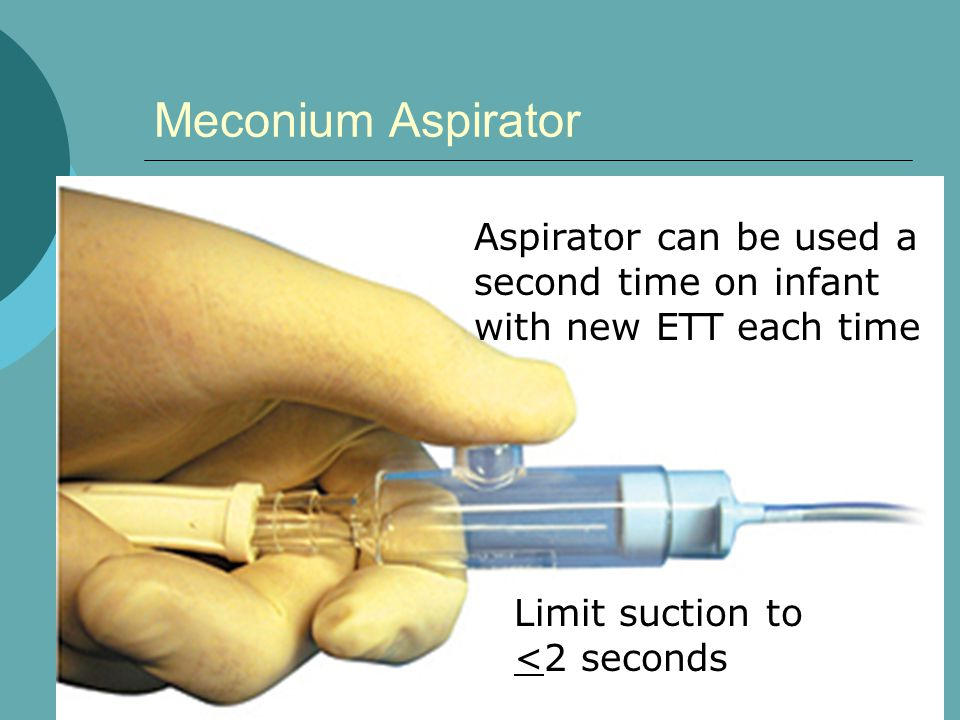 Meconium Aspirator Aspirator can be used a second time on infant