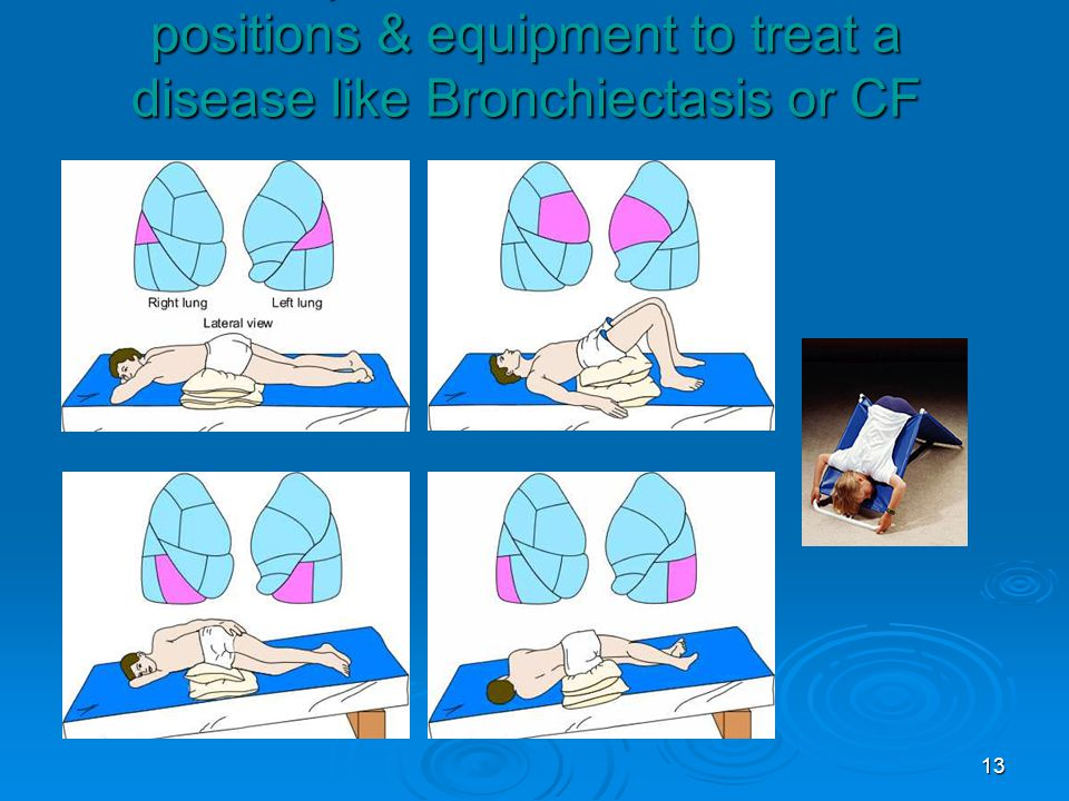 Examples of some Chest PT positions & equipment to treat a disease like Bronchiectasis or CF