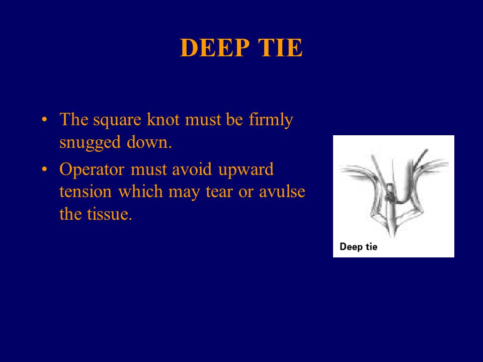 DEEP TIE The square knot must be firmly snugged down.