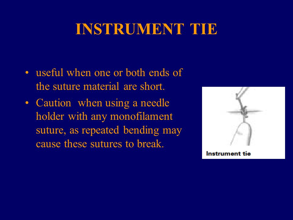 INSTRUMENT TIE useful when one or both ends of the suture material are short.