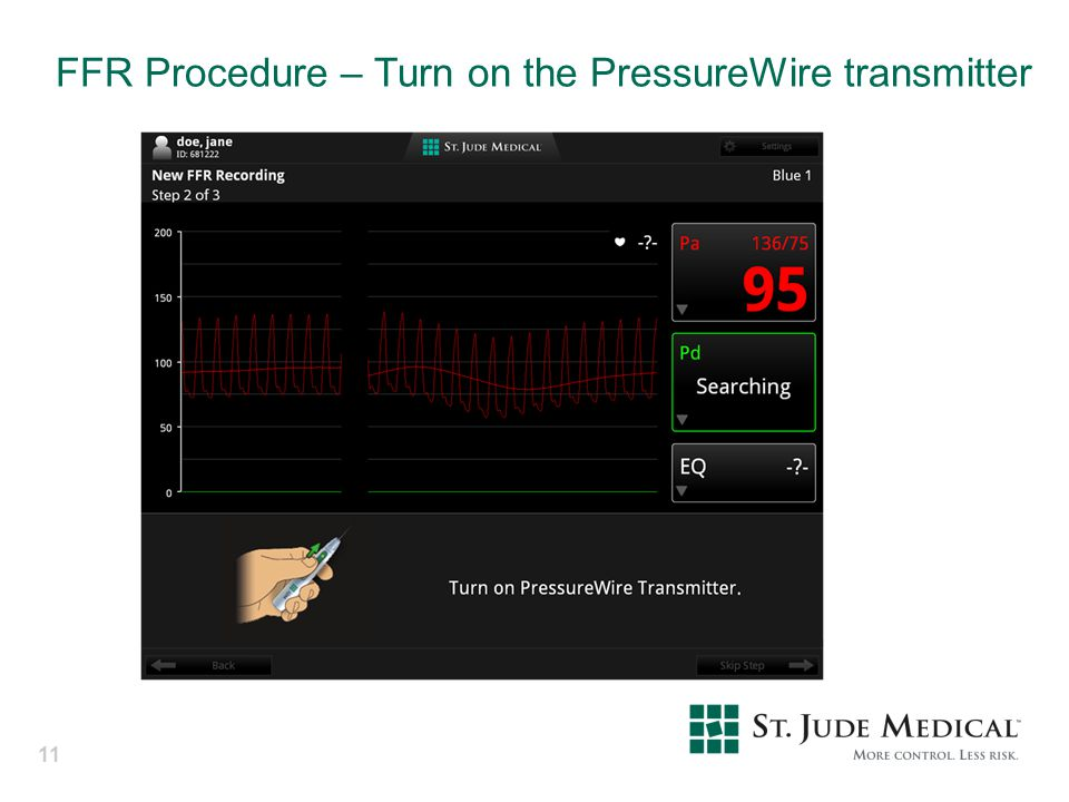 FFR Procedure – Turn on the PressureWire transmitter