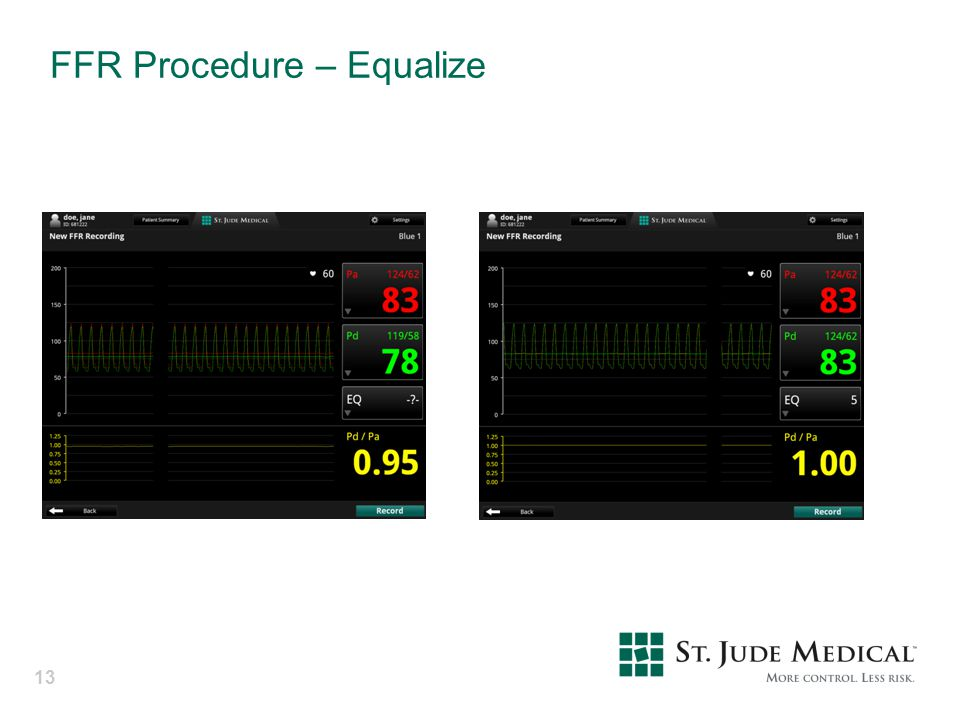 FFR Procedure – Equalize
