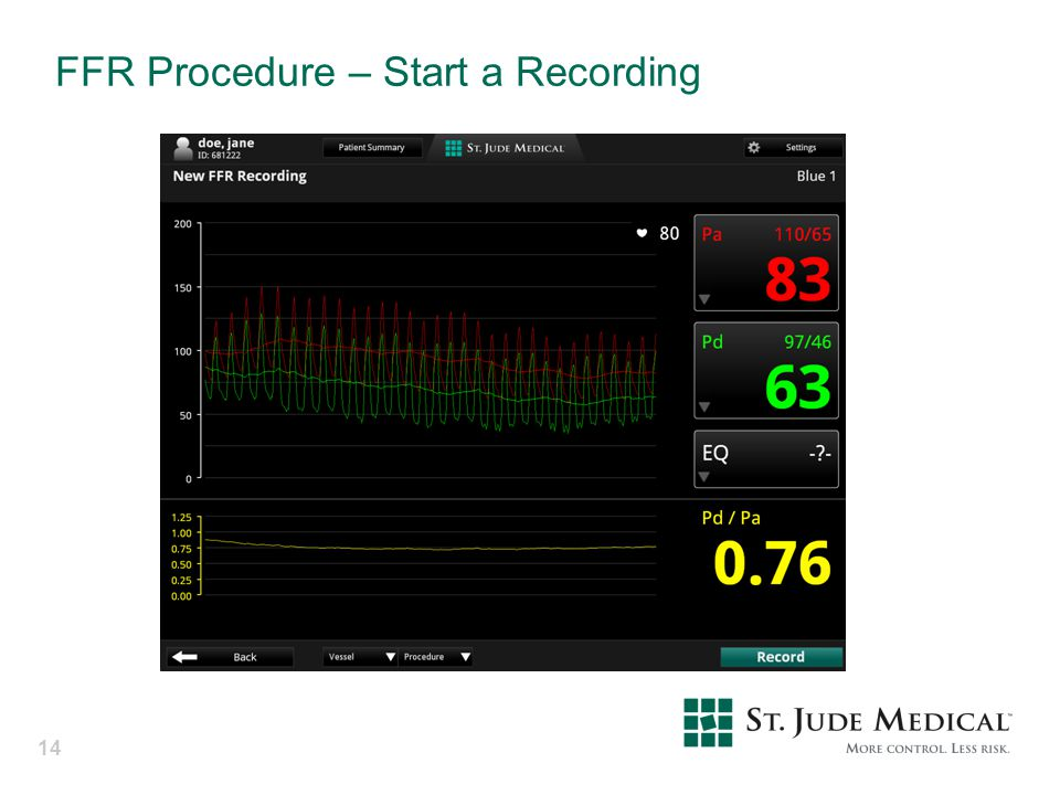 FFR Procedure – Start a Recording