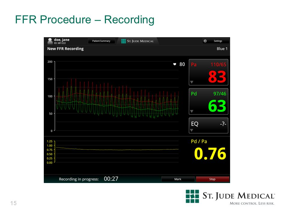 FFR Procedure – Recording