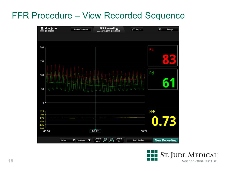 FFR Procedure – View Recorded Sequence
