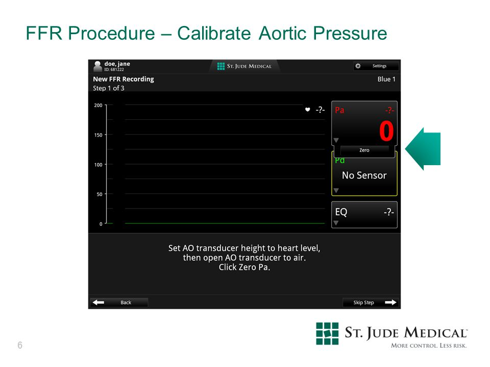 FFR Procedure – Calibrate Aortic Pressure
