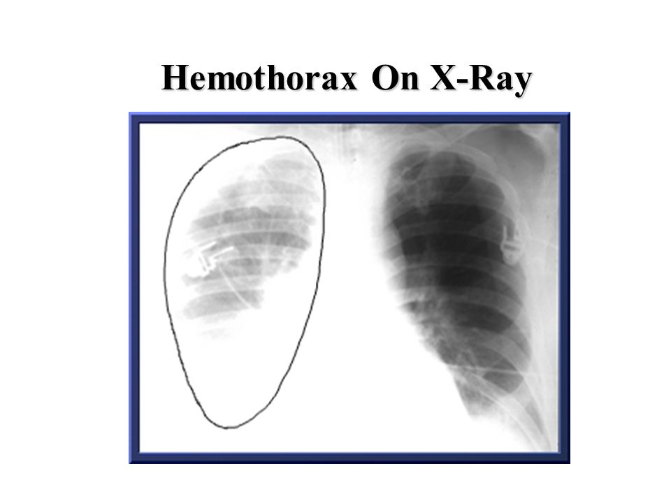 Hemothorax On X-Ray