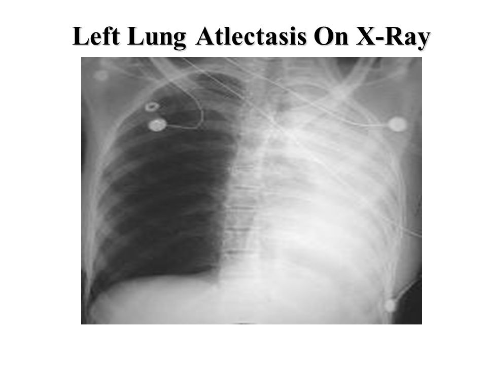 Left Lung Atlectasis On X-Ray