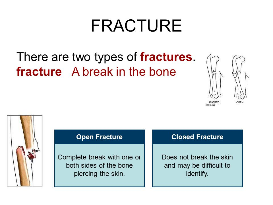 FRACTURE There are two types of fractures.