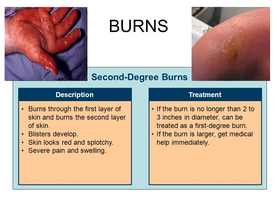 BURNS Second-Degree Burns Description Treatment