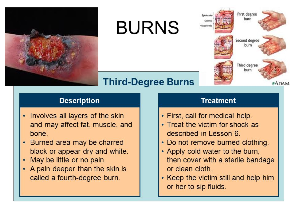 BURNS Third-Degree Burns Description Treatment