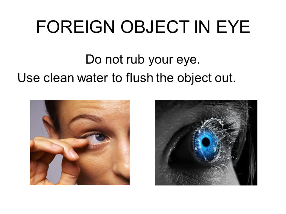 FOREIGN OBJECT IN EYE Do not rub your eye.