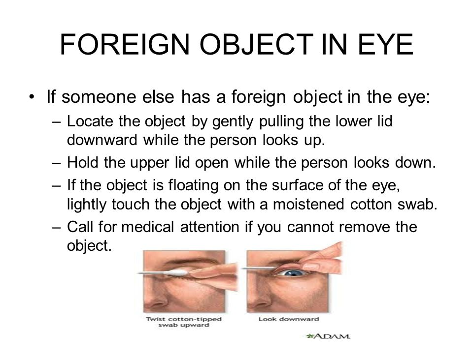 FOREIGN OBJECT IN EYE If someone else has a foreign object in the eye: