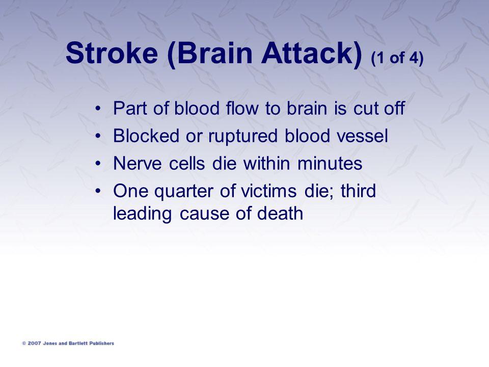 Stroke (Brain Attack) (1 of 4)