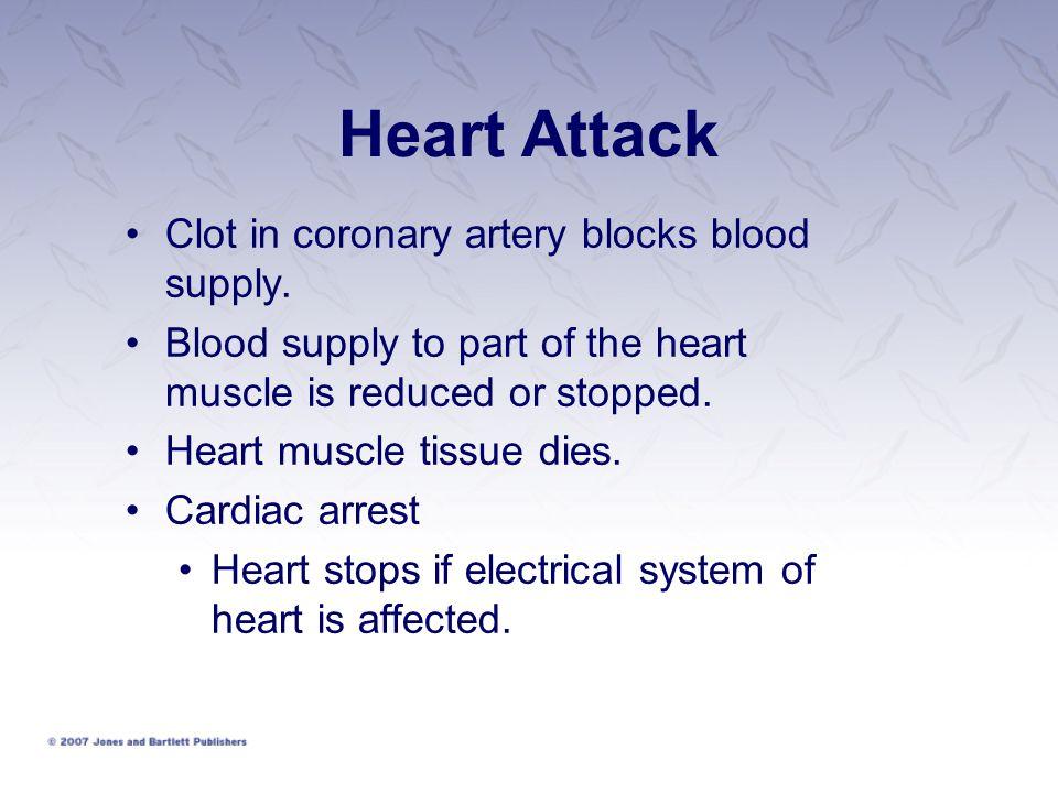 Heart Attack Clot in coronary artery blocks blood supply.