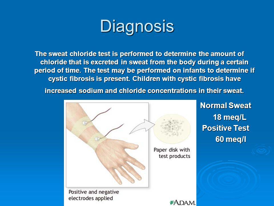 Diagnosis Normal Sweat 18 meq/L Positive Test 60 meq/l