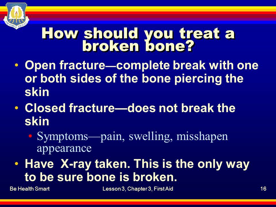 How should you treat a broken bone