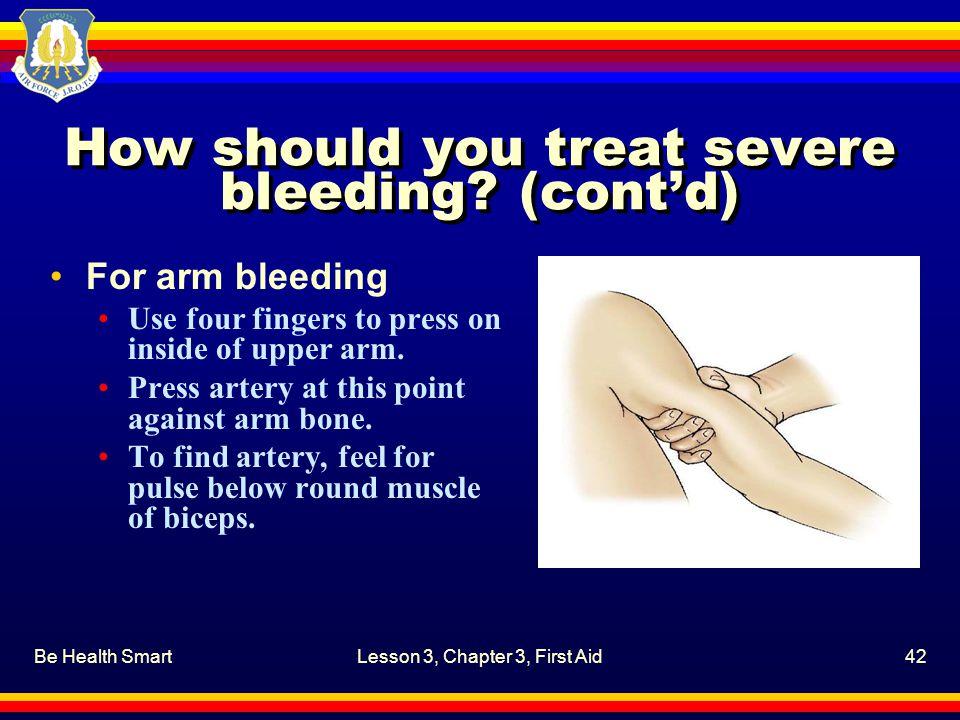 How should you treat severe bleeding (cont'd)